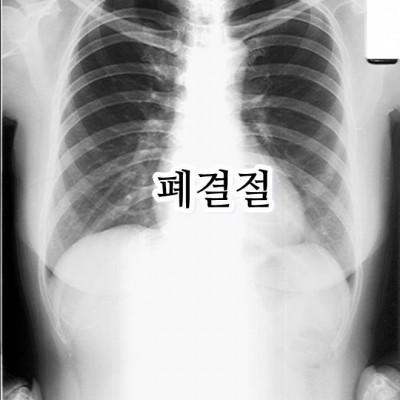 lung nodule4