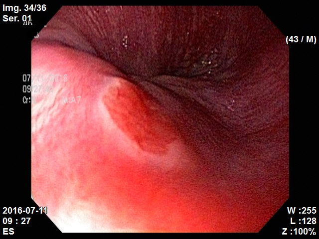 heterotopic gastric mucosa of esophagus1